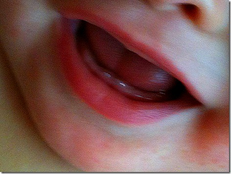 Landon Teeth1